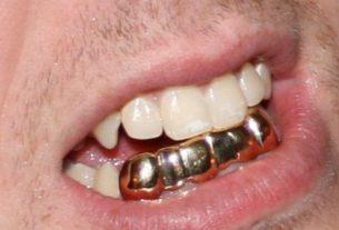 Наивный мужик с металлическими зубами